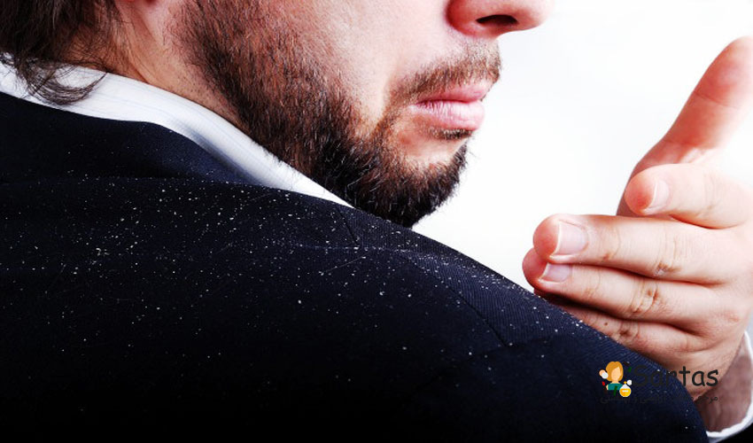 نکات طلایی جلوگیری از شوره مو (سریع) درمان موثر| سرتاس