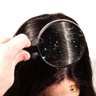 نکات طلایی جلوگیری از شوره مو (سریع) درمان موثر|سرتاس